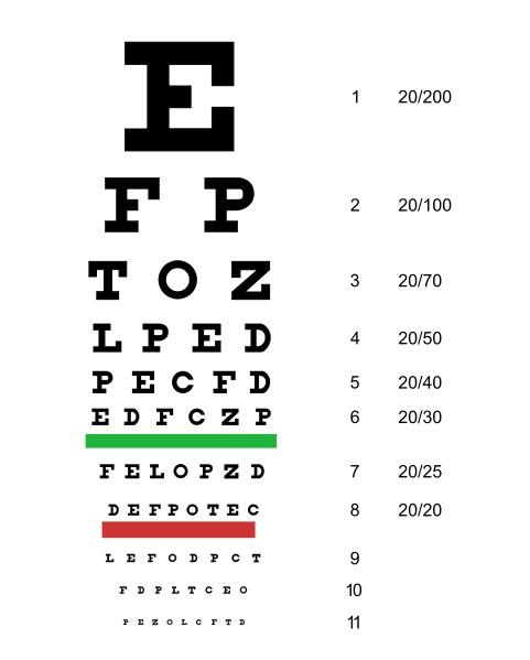 Зачем очки при близорукости
